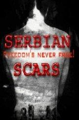 Постер к фильму «Serbian Scars»