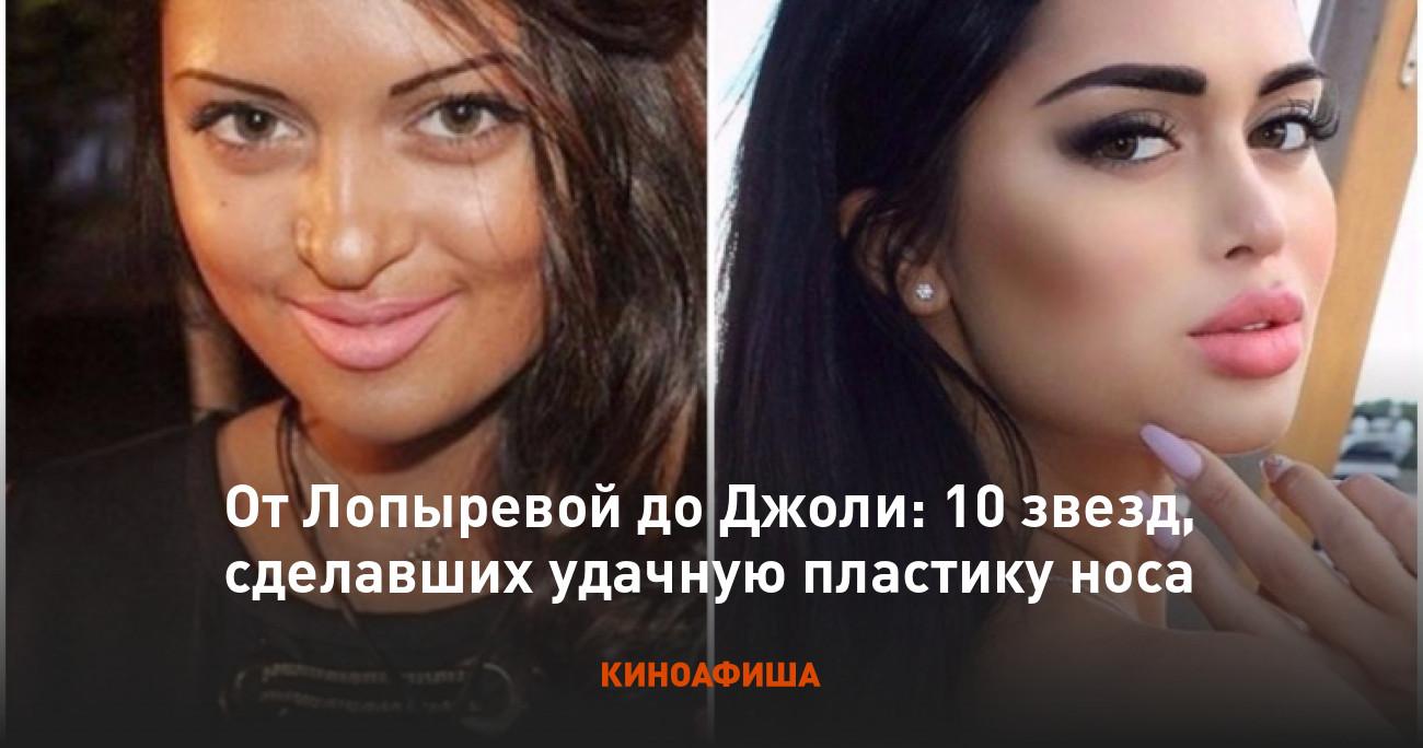 Анджелина Джоли до и после пластики: фото актрисы, делала ли она пластические операции, новости и фото 2019